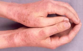 pikkelysömör ekcéma az arcon hogyan kell kezelni vörös foltok a kezeken viszket kezelés