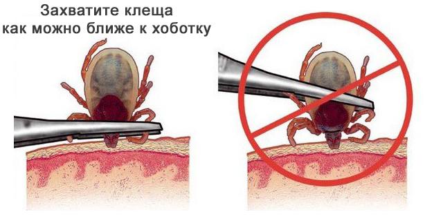Kene ısırığı olan immünoglobulin: kullanım, kontrendikasyonlar 43